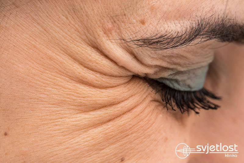 Did you know that wrinkles around the eyes are the first sign of ageing?