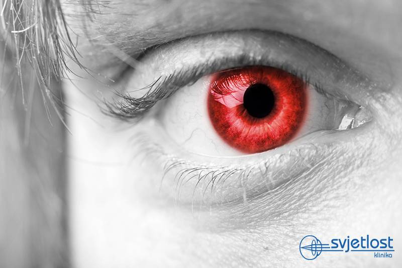 "Do you know about medical importance of ""red eyes effect"" in the photos?"