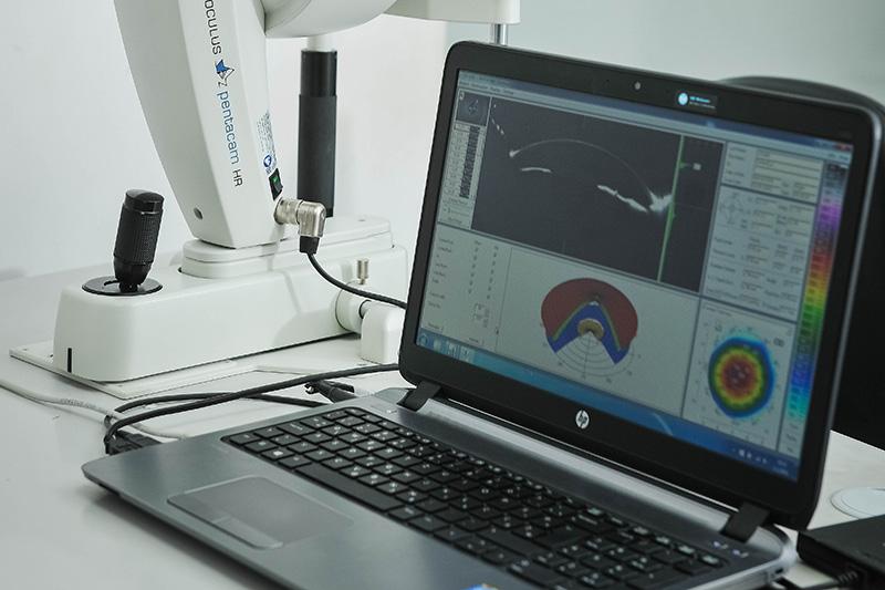 HR Oculus Pentacam - lasersko skidanje dioptrije